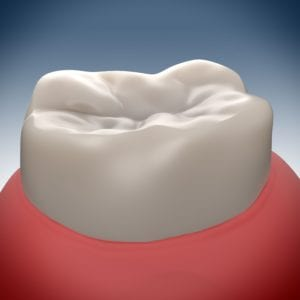 3-d rendering of a healthy molar