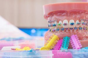 Braces on a tooth model surrounded by colored bands
