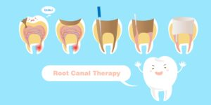 pulp therapy for baby teeth diagram